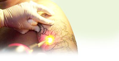 Laser tattoo removal helensblog for Tattoo removal in kansas