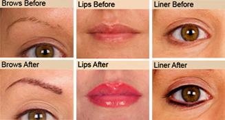 Semi permanent makeup top ups only £115 - Redeem Clinic