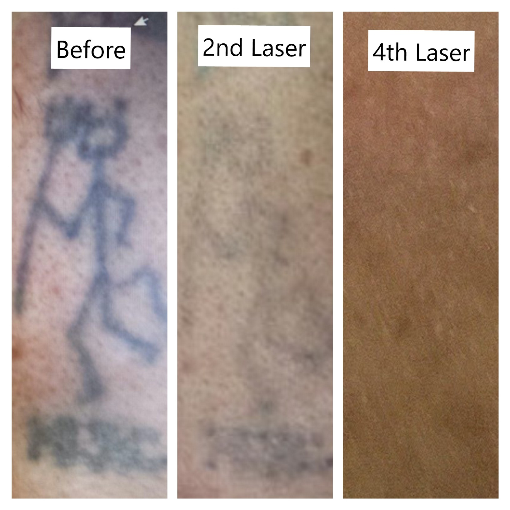 Laser tattoo removal York - Ruby laser Hull clinic