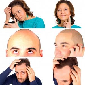 scalp micropigmentation .. .