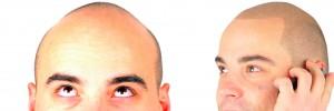 2scalp-micro-pigmentation