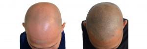 Hair densifiction