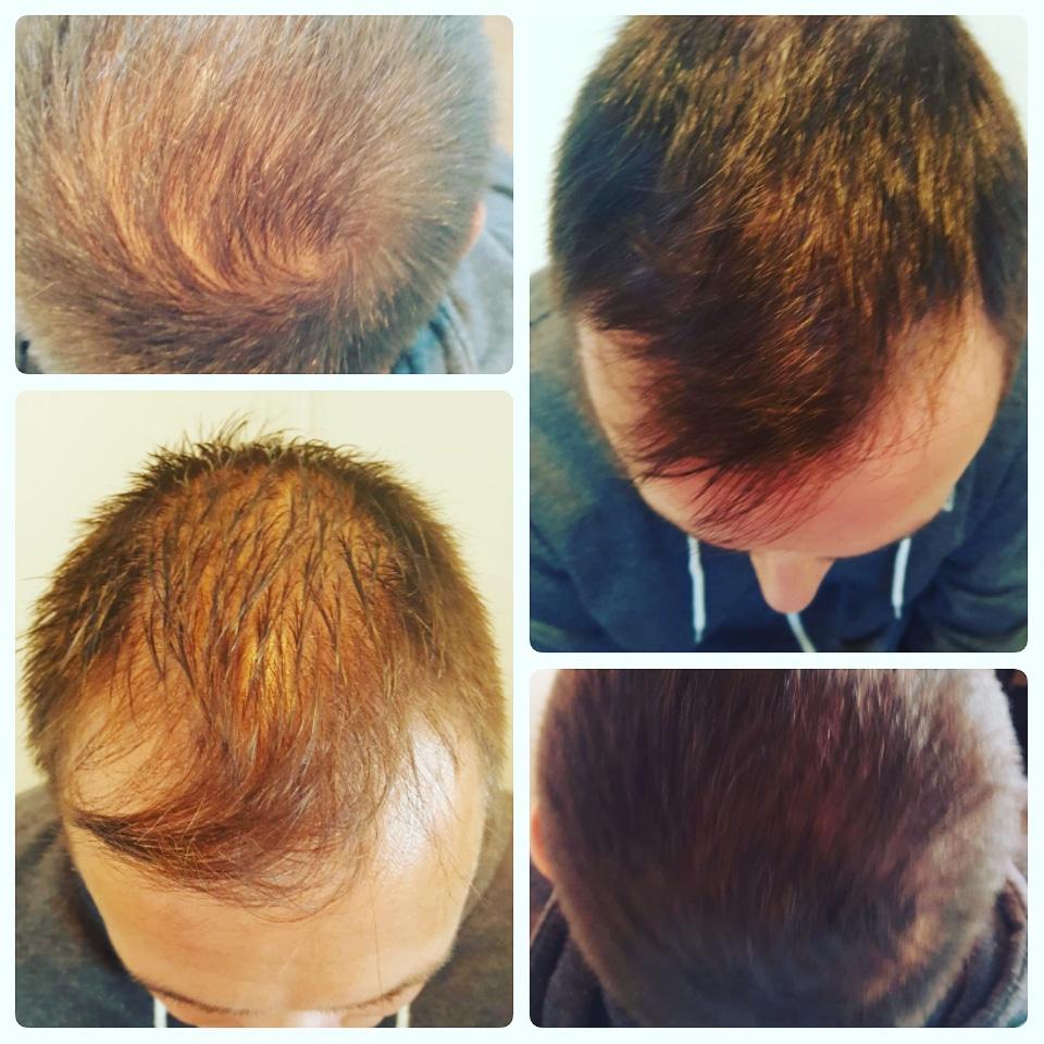 hair densification 2