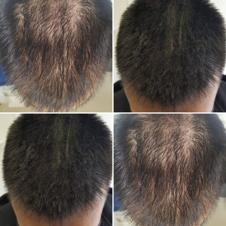 hair thickening smp