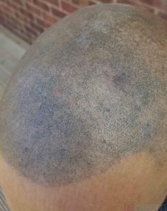 bad scalp micropigmentation