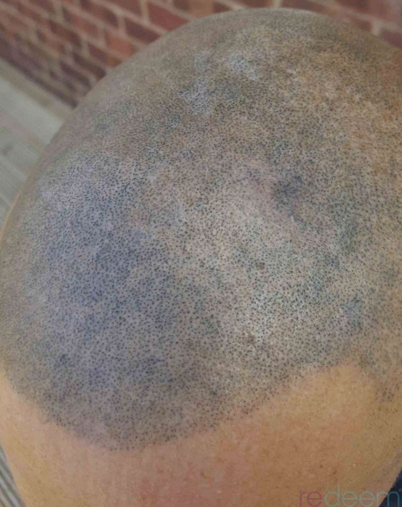bad scalp micropigmentation