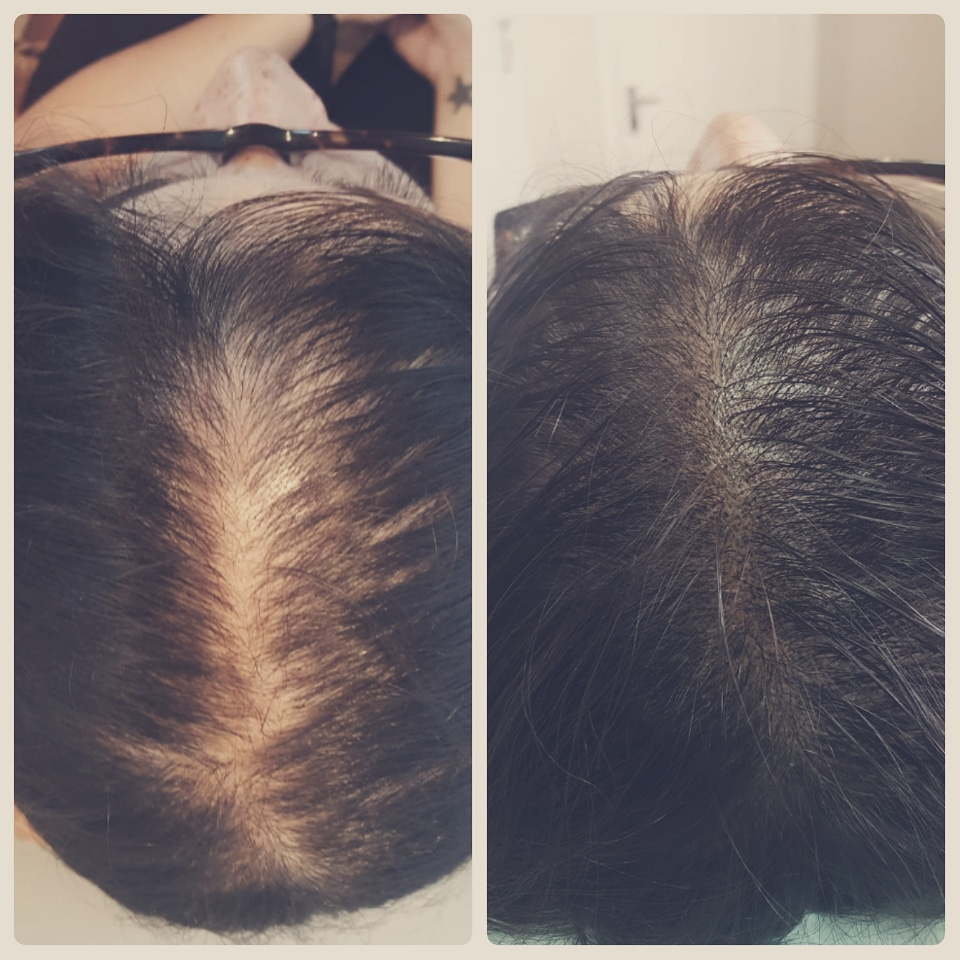 female scalp micropigmentation