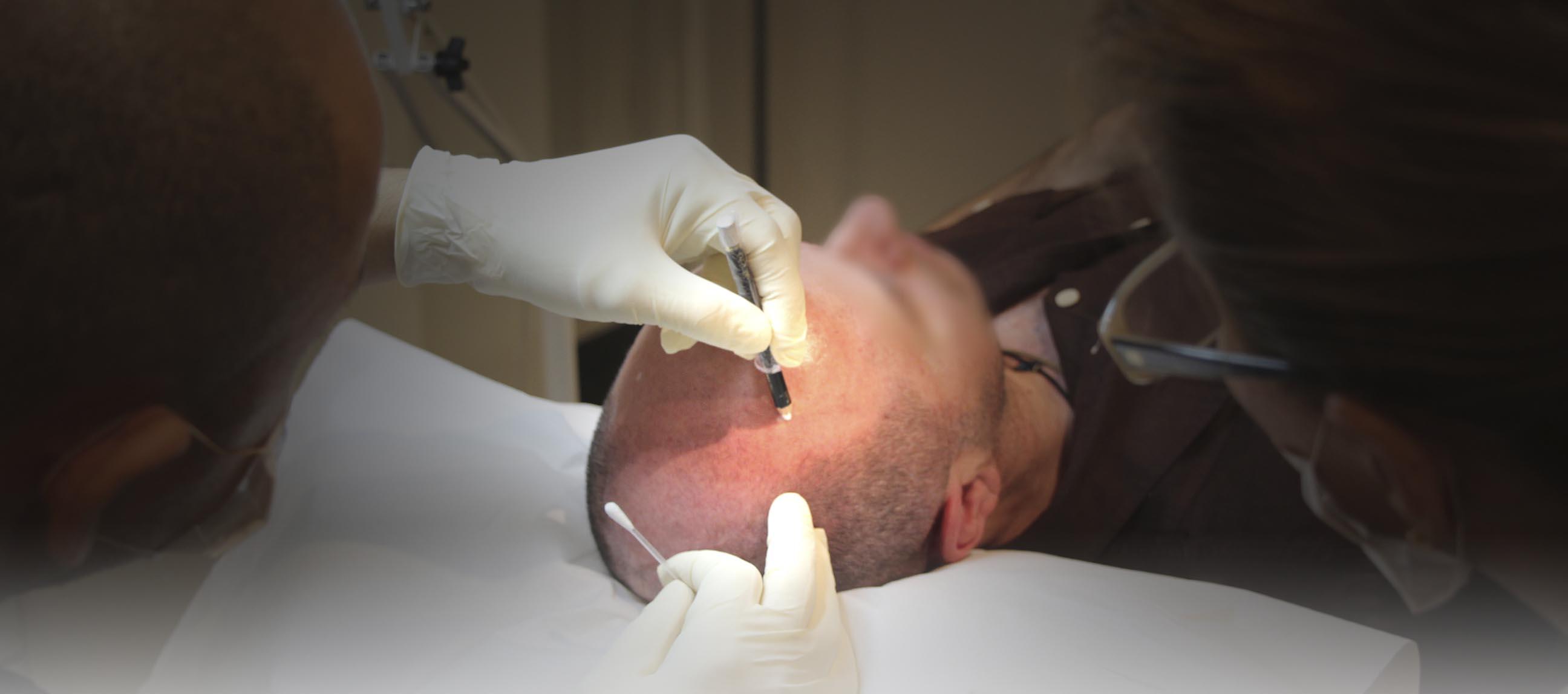 redeem eyebrow tattoo scalp micropigmentation tattoo