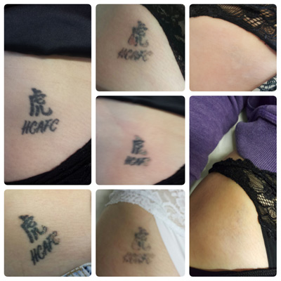 Laser Tattoo Removal Before And After Redeem Hull