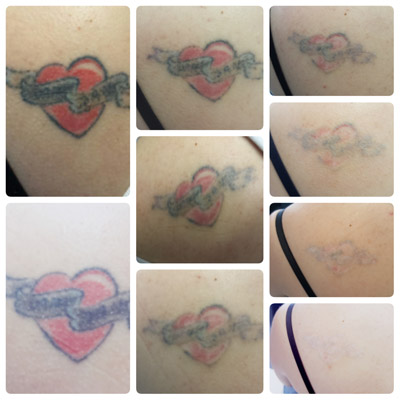 Laser tattoo removal before and after redeem hull for Tattoo laser removal near me