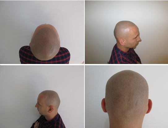 scalp micropigmentation haram photo