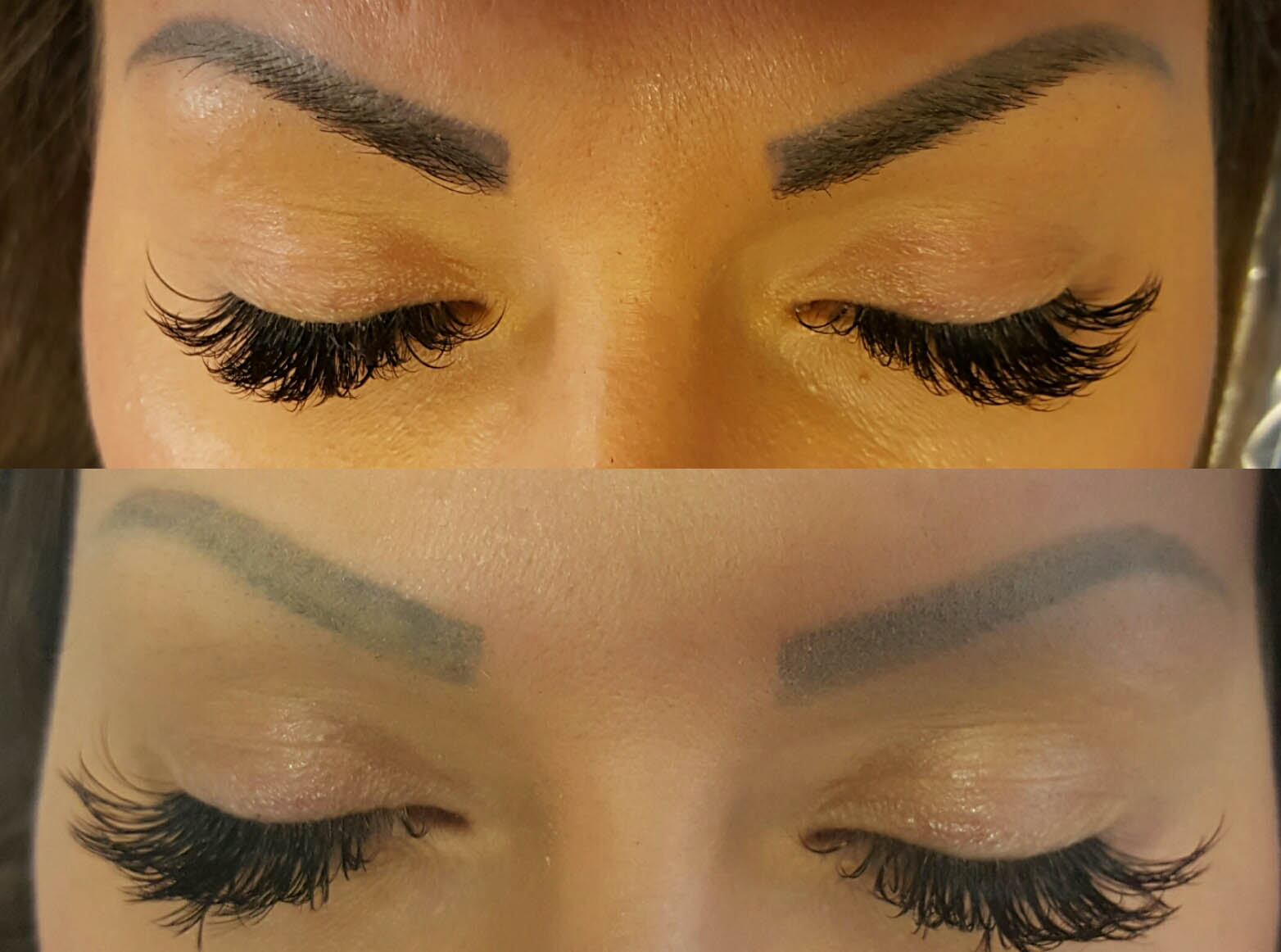 Microblading Removal Inc Tattooed Brows