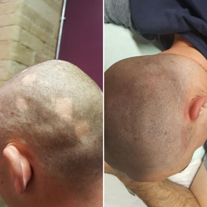 alopecia cover up