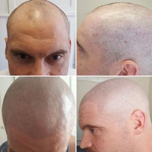 shaven scalp smp