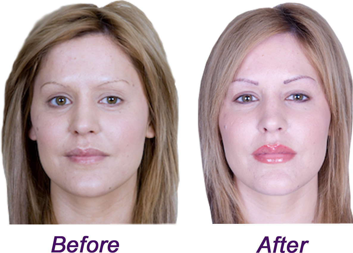 before after side by side full face_edited-1 - redeem clinic