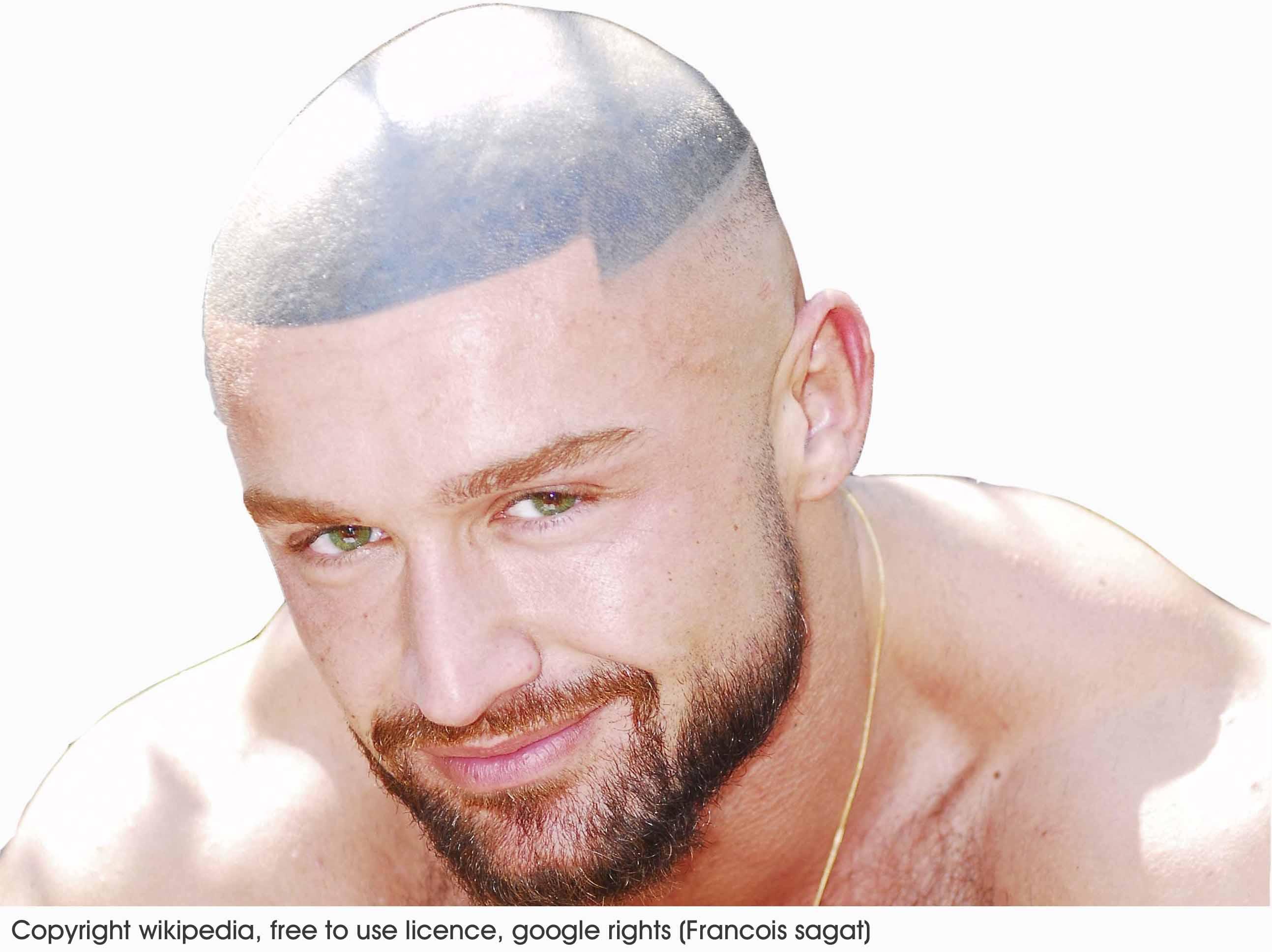 Helmet head scalp micropigmentation redeem clinic for Hairline tattoo cost