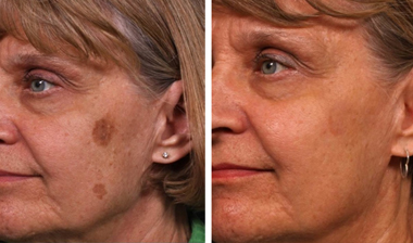 Age Spot Removal With The Regions Leading Laser Clinic