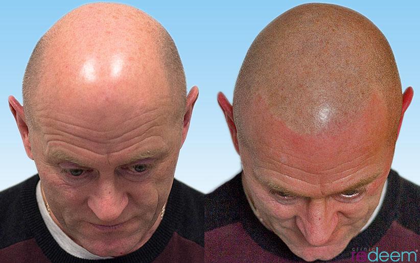 3D scalp micropigmentation UK