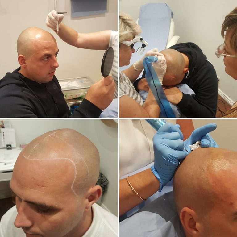 scalp micropigmentation leeds